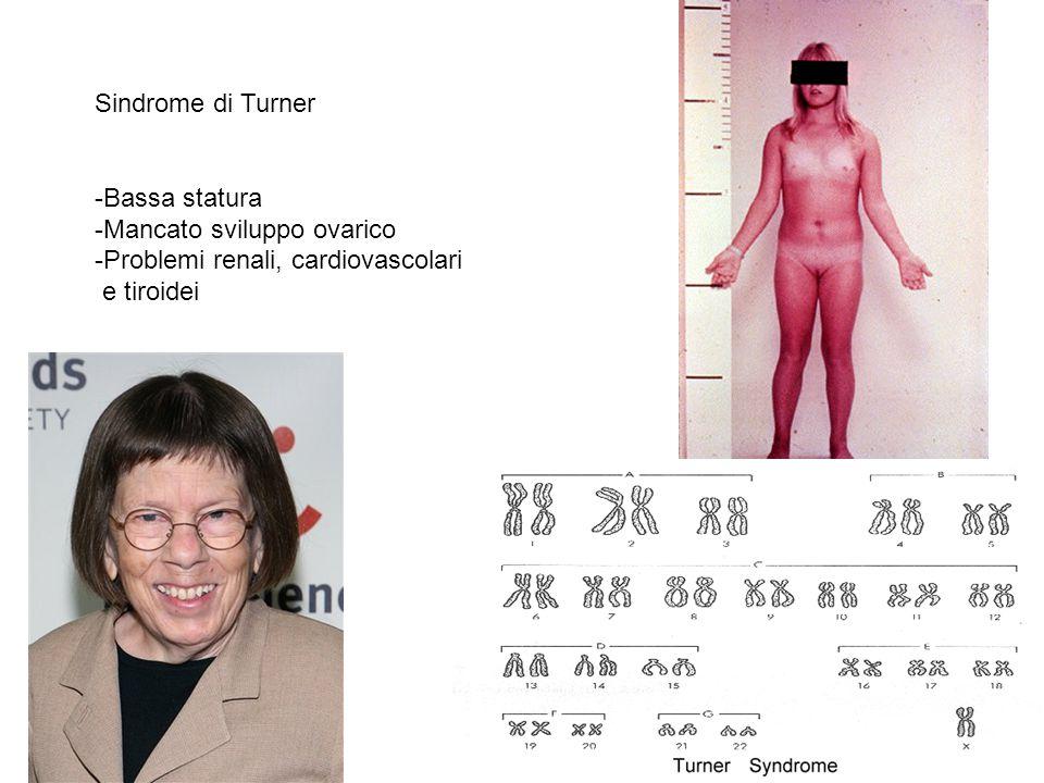 Sindrome di Turner -Bassa statura -Mancato sviluppo ovarico -Problemi renali, cardiovascolari e tiroidei