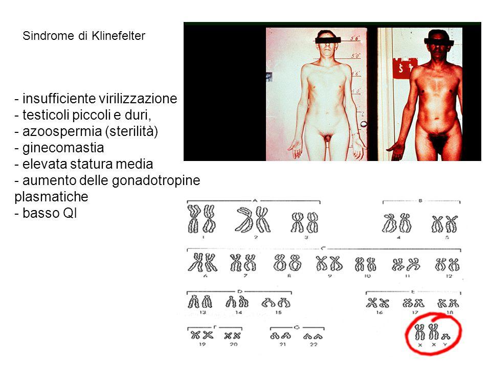 Sindrome di Klinefelter - insufficiente virilizzazione - testicoli piccoli e duri, - azoospermia (sterilità) - ginecomastia - elevata statura media -