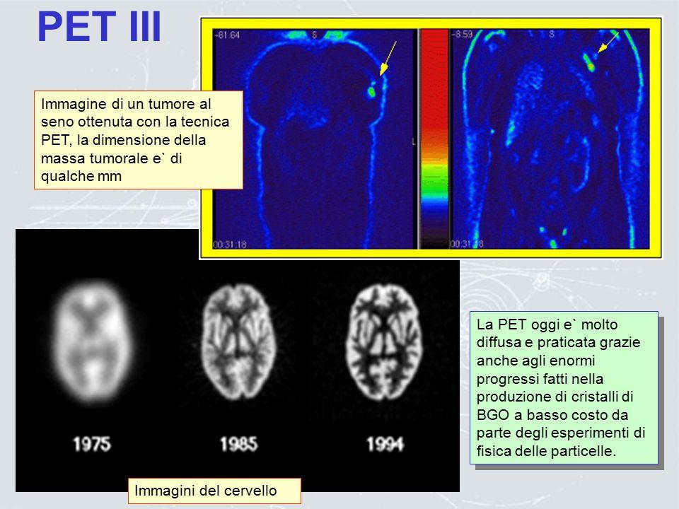 PET II Le risoluzioni spaziali ottenibili con la PET dipendono dal radioisotopo usato: ~ 2 mm  ~ 4 mm z Per ricostruire immagini tridimensionali s