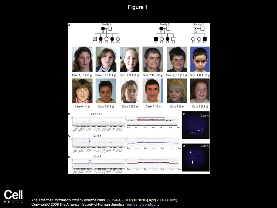 Figure 1 The American Journal of Human Genetics 2009 85, 394-400DOI: (10.1016/j.ajhg.2009.08.001) Copyright © 2009 The American Society of Human Genet