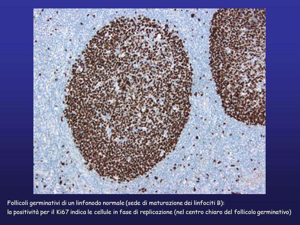 Follicoli germinativi di un linfonodo normale (sede di maturazione dei linfociti B): la positività per il Ki67 indica le cellule in fase di replicazione (nel centro chiaro del follicolo germinativo)