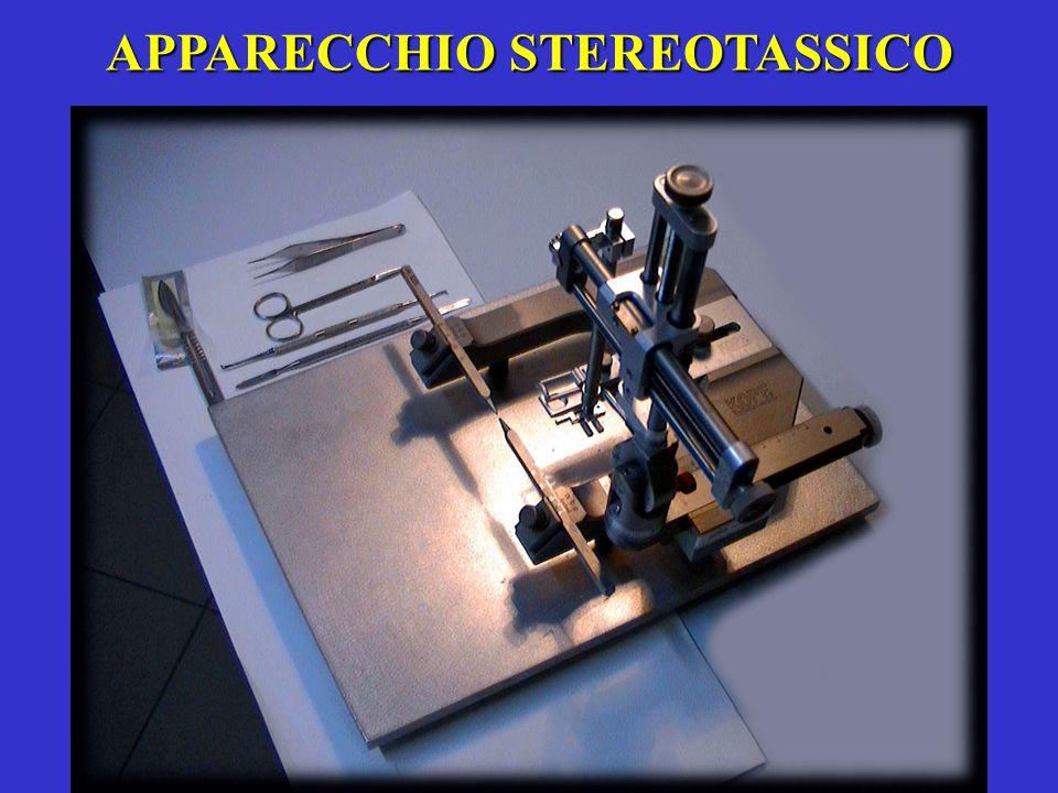 APPARECCHIO STEREOTASSICO