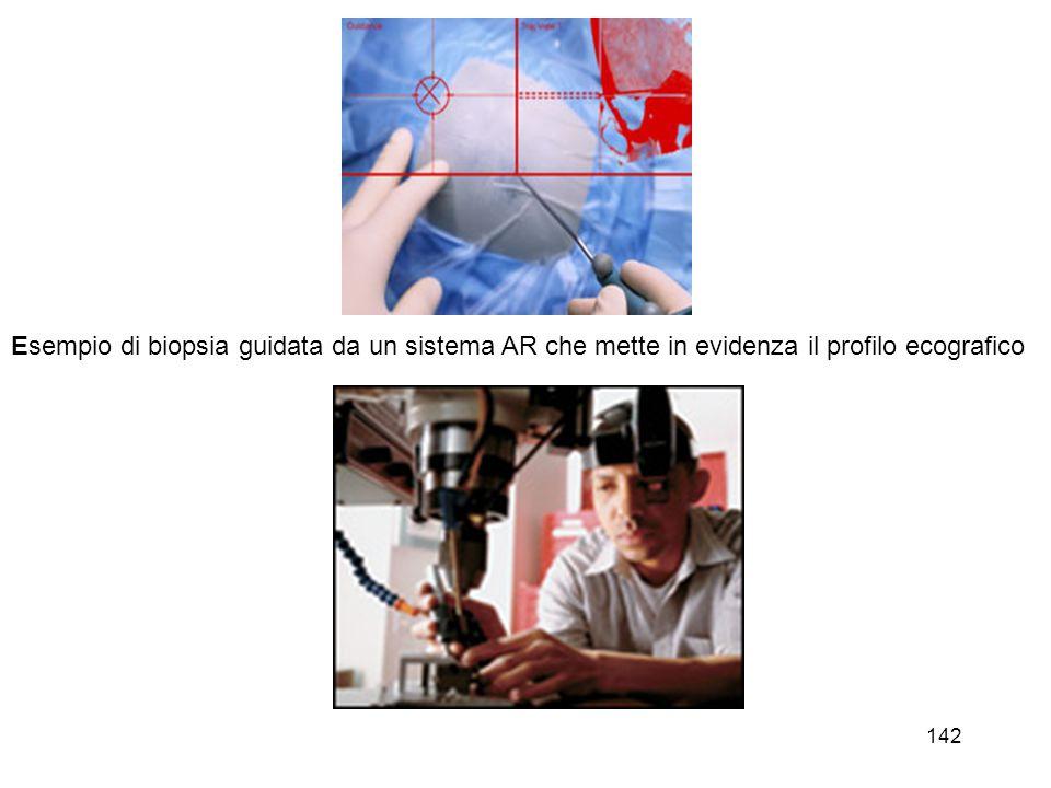 143 Esempio di sovrapposizione di informazioni 3D ricavate da una risonanza magnetica per applicazioni in chirurgia ortopedica.