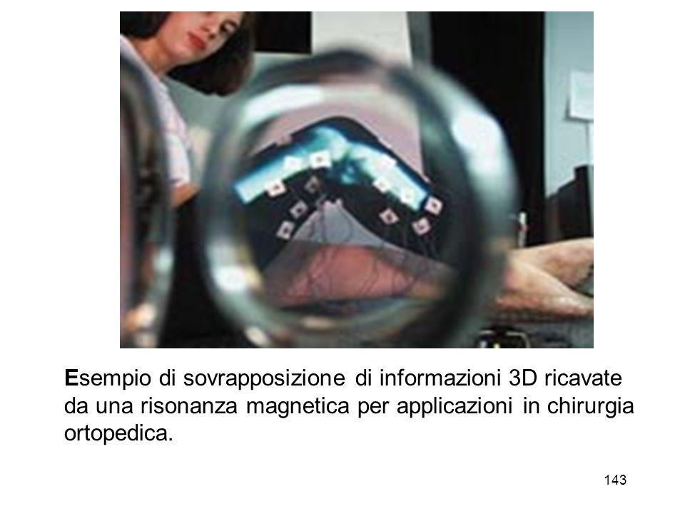 144 Il chirurgo prova un sistema di AR applicabile ad interventi in laparoscopia.