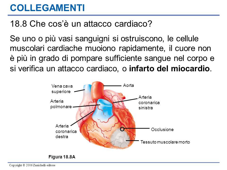 Copyright © 2006 Zanichelli editore COLLEGAMENTI 18.8 Che cos'è un attacco cardiaco? Se uno o più vasi sanguigni si ostruiscono, le cellule muscolari