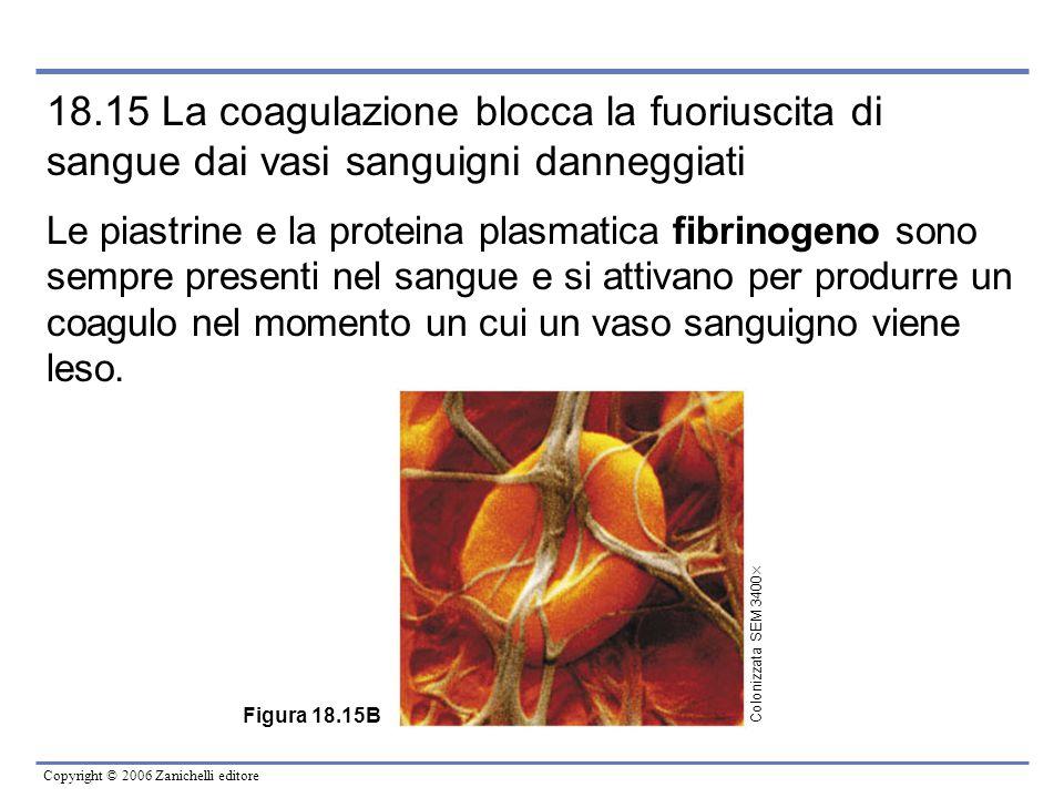 Copyright © 2006 Zanichelli editore 18.15 La coagulazione blocca la fuoriuscita di sangue dai vasi sanguigni danneggiati Le piastrine e la proteina pl