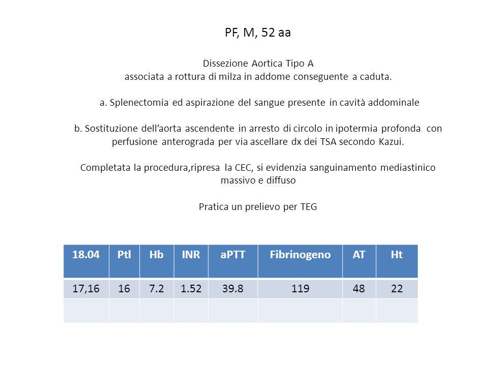 PF, M, 52 aa Dissezione Aortica Tipo A associata a rottura di milza in addome conseguente a caduta. a. Splenectomia ed aspirazione del sangue presente
