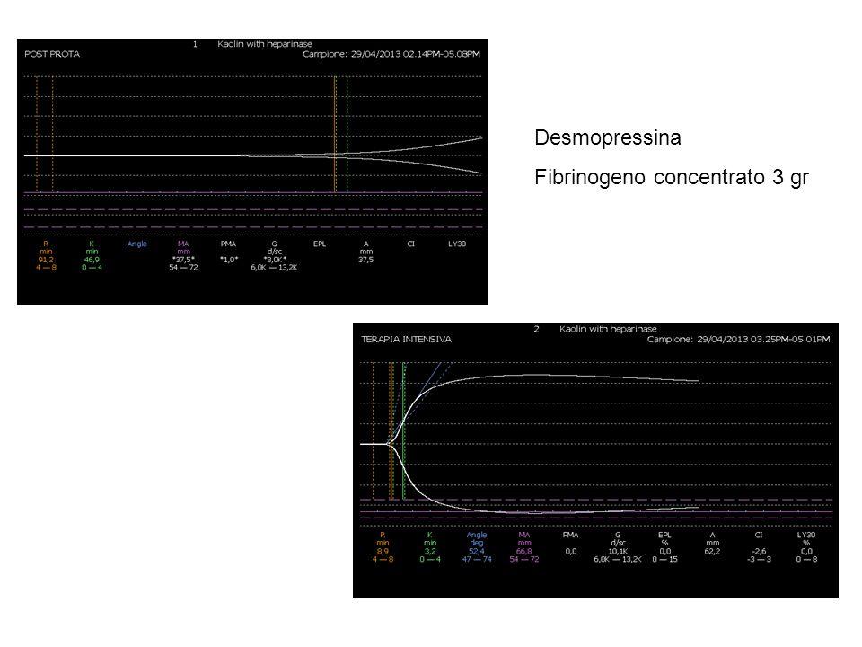 Desmopressina 0,3 γ/kg Fibrinogeno concentrato 3 gr
