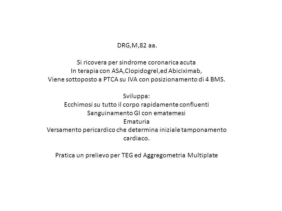 DRG,M,82 aa. Si ricovera per sindrome coronarica acuta In terapia con ASA,Clopidogrel,ed Abiciximab, Viene sottoposto a PTCA su IVA con posizionamento