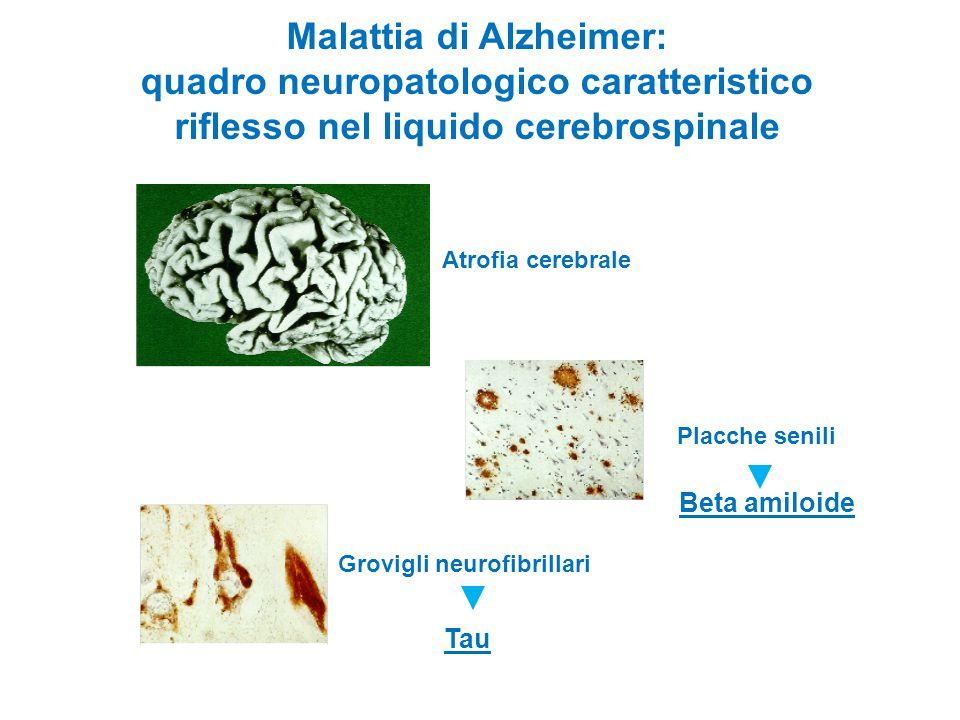 Malattia di Alzheimer: quadro neuropatologico caratteristico riflesso nel liquido cerebrospinale Atrofia cerebrale Placche senili Grovigli neurofibril