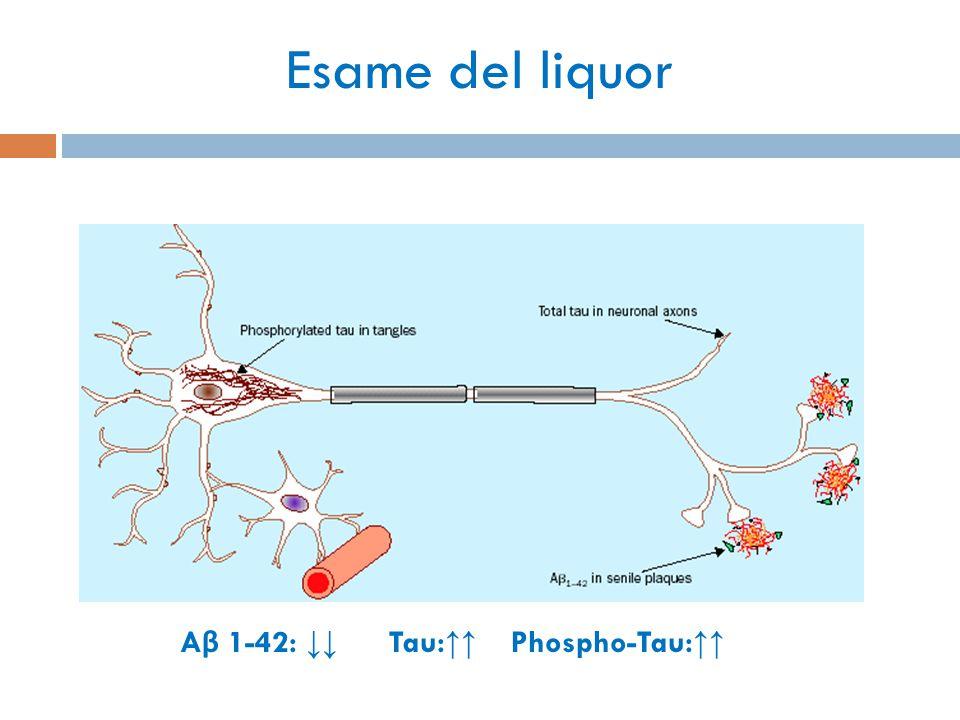 Esame del liquor A β 1-42: ↓↓ Tau: ↑↑ Phospho-Tau: ↑↑