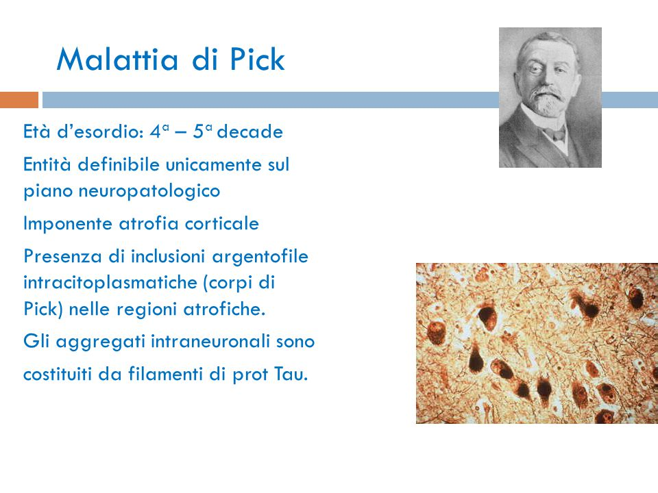 Malattia di Pick Età d'esordio: 4 a – 5 a decade Entità definibile unicamente sul piano neuropatologico Imponente atrofia corticale Presenza di inclus
