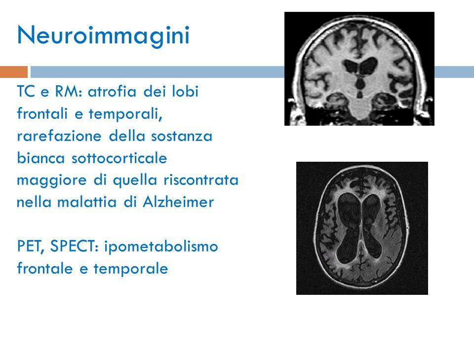 Neuroimmagini TC e RM: atrofia dei lobi frontali e temporali, rarefazione della sostanza bianca sottocorticale maggiore di quella riscontrata nella ma