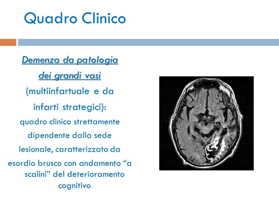 Quadro Clinico Demenza da patologia dei grandi vasi (multiinfartuale e da infarti strategici): quadro clinico strettamente dipendente dalla sede lesio
