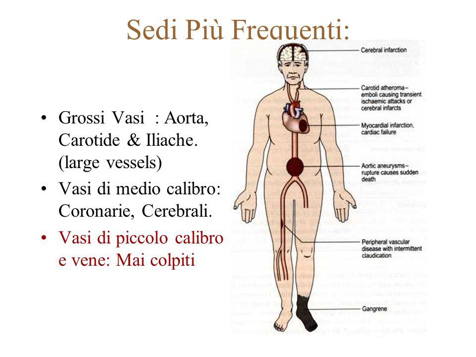 Sedi Più Frequenti: Grossi Vasi : Aorta, Carotide & Iliache. (large vessels) Vasi di medio calibro: Coronarie, Cerebrali. Vasi di piccolo calibro e ve