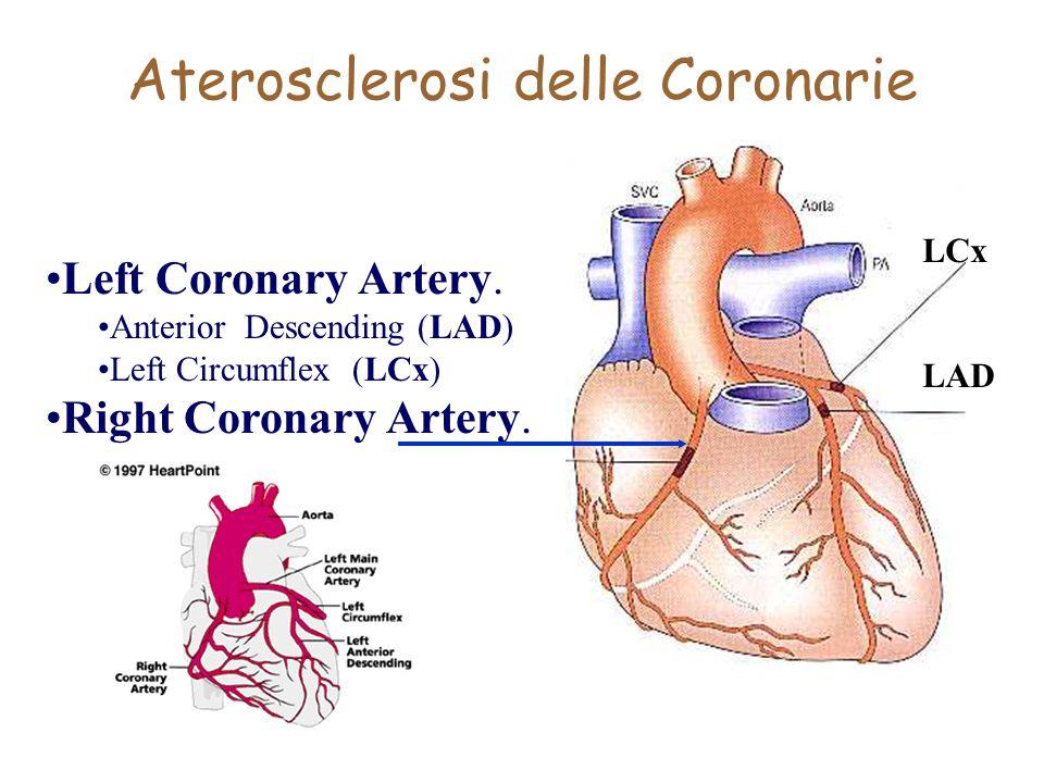 Aterosclerosi delle Coronarie Left Coronary Artery. Anterior Descending (LAD) Left Circumflex (LCx) Right Coronary Artery. LCx LAD
