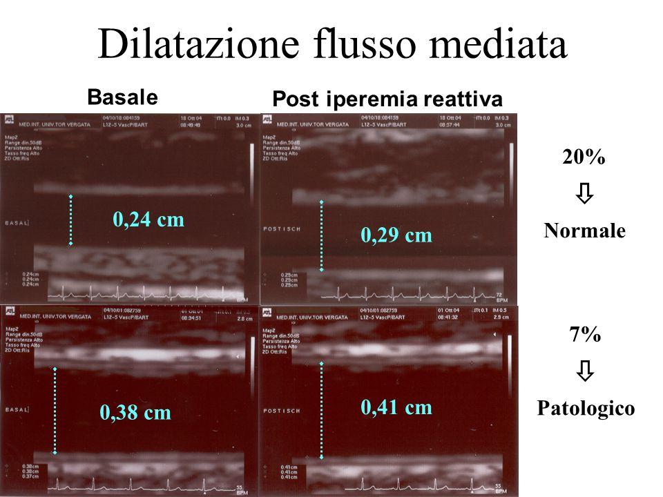 Dilatazione flusso mediata 0,29 cm Post iperemia reattiva 0,38 cm 0,41 cm 20%  Normale 7%  Patologico Basale 0,24 cm