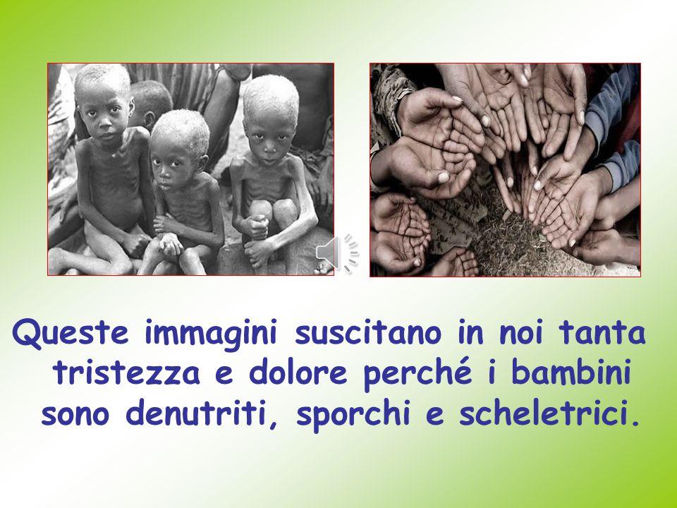 Queste immagini suscitano in noi tanta tristezza e dolore perché i bambini sono denutriti, sporchi e scheletrici.