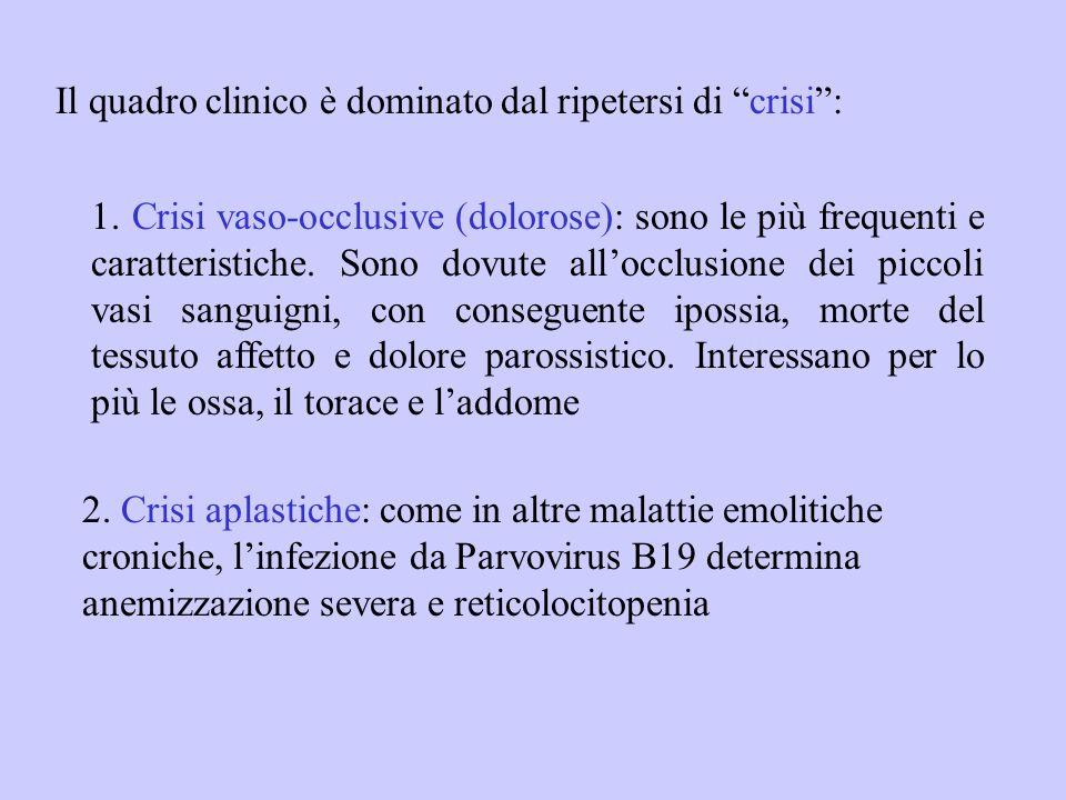 """Il quadro clinico è dominato dal ripetersi di """"crisi"""": 2. Crisi aplastiche: come in altre malattie emolitiche croniche, l'infezione da Parvovirus B19"""