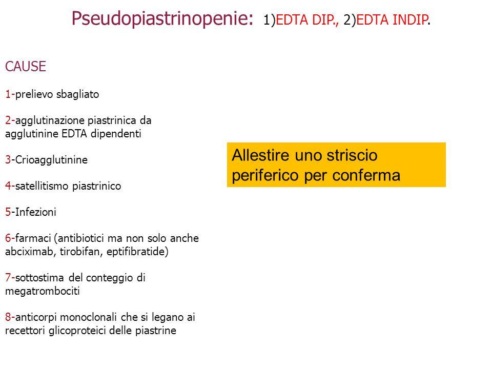 Pseudopiastrinopenie: 1)EDTA DIP., 2)EDTA INDIP. CAUSE 1-prelievo sbagliato 2-agglutinazione piastrinica da agglutinine EDTA dipendenti 3-Crioagglutin