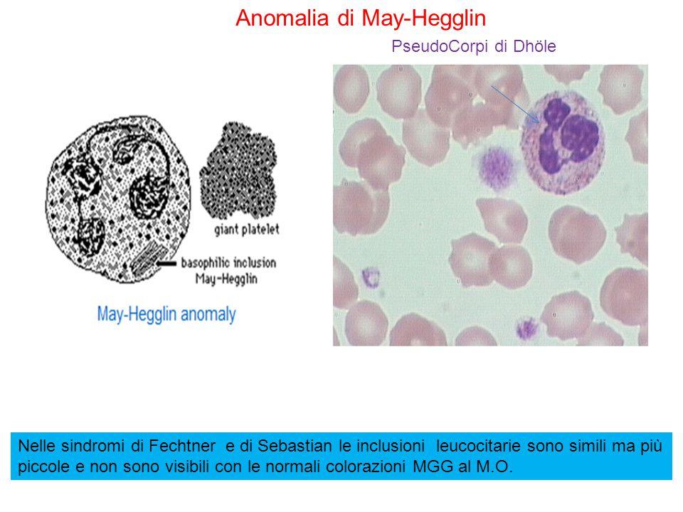 Anomalia di May-Hegglin PseudoCorpi di Dhöle Nelle sindromi di Fechtner e di Sebastian le inclusioni leucocitarie sono simili ma più piccole e non son