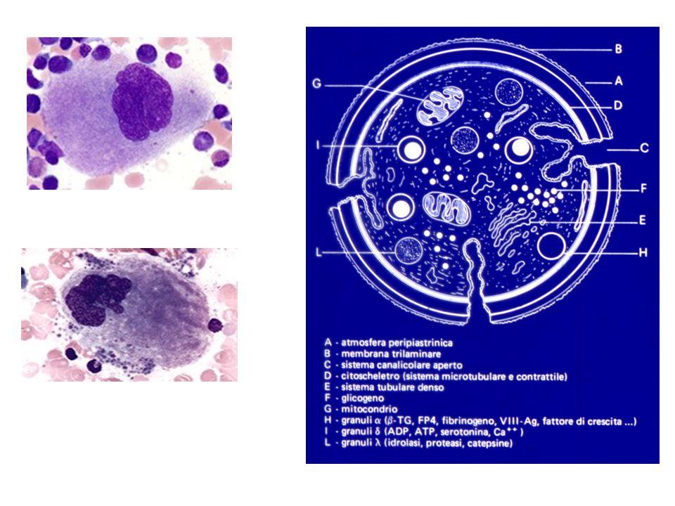 Anomalia di May-Hegglin PseudoCorpi di Dhöle Nelle sindromi di Fechtner e di Sebastian le inclusioni leucocitarie sono simili ma più piccole e non sono visibili con le normali colorazioni MGG al M.O.