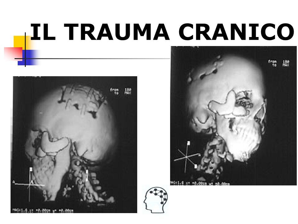 TraumaCranico Contusioni cerebrali Danno assonale diffuso: a seguito di una ferita chiusa, lo spostamento e la rotazione della massa cerebrale possono provocare il danneggiamento diffuso delle fibre assonali di collegamento Danno Primario