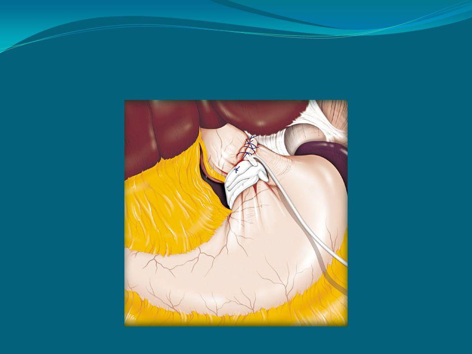 Bendaggio gastrico regolabile: problemi aperti Bendaggio senza punti di stabilizzazione .