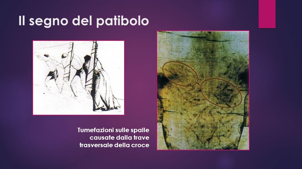 Il segno del patibolo Tumefazioni sulle spalle causate dalla trave trasversale della croce