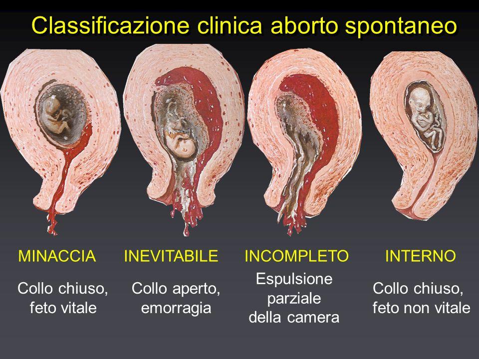 MINACCIA Collo chiuso, feto vitale INEVITABILE Collo aperto, emorragia INCOMPLETO Espulsione parziale della camera INTERNO Collo chiuso, feto non vita