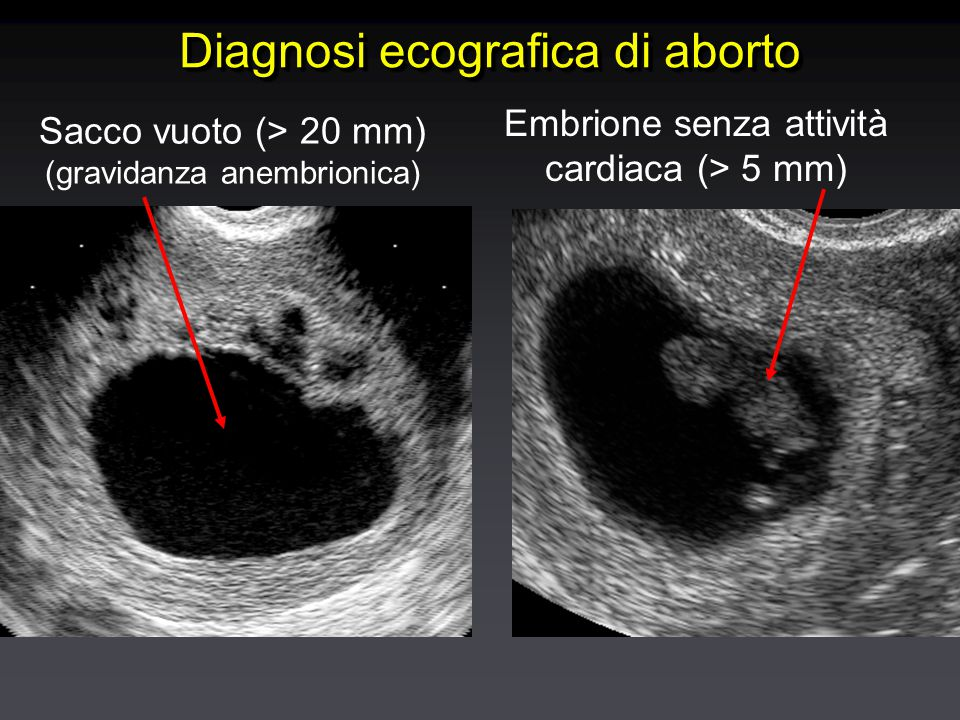 Diagnosi ecografica di aborto Sacco vuoto (> 20 mm) (gravidanza anembrionica) Embrione senza attività cardiaca (> 5 mm)