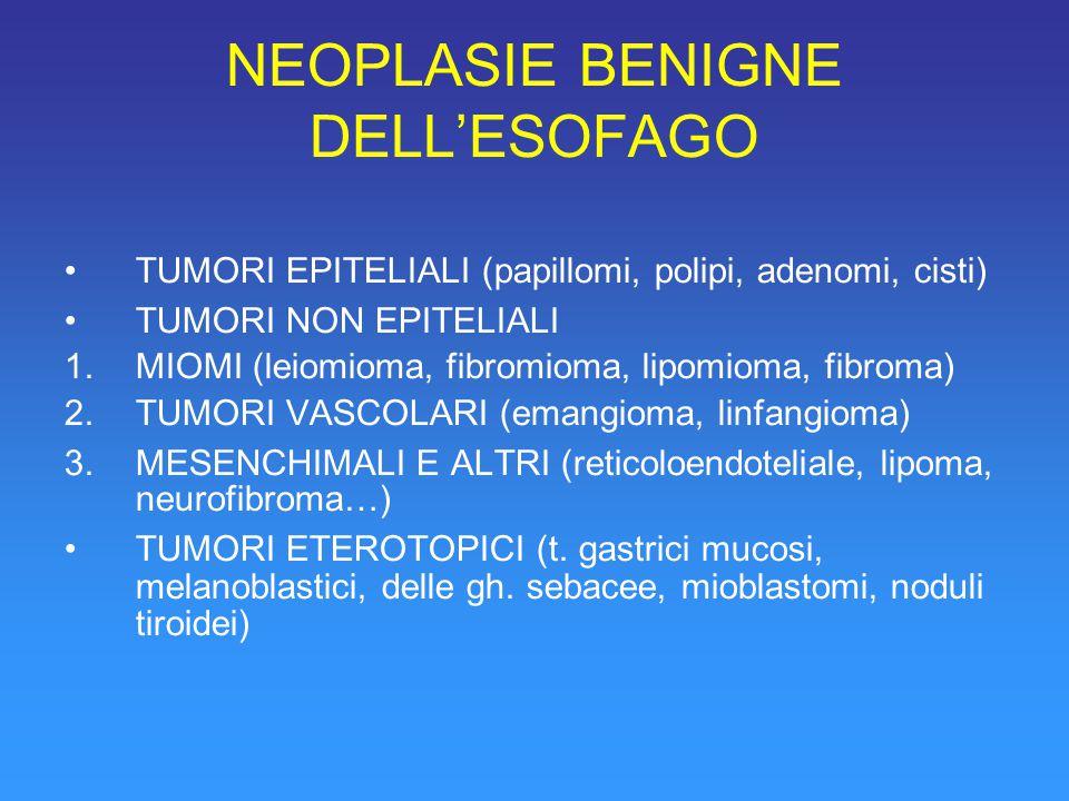 NEOPLASIE BENIGNE DELL'ESOFAGO TUMORI EPITELIALI (papillomi, polipi, adenomi, cisti) TUMORI NON EPITELIALI 1.MIOMI (leiomioma, fibromioma, lipomioma, fibroma) 2.TUMORI VASCOLARI (emangioma, linfangioma) 3.MESENCHIMALI E ALTRI (reticoloendoteliale, lipoma, neurofibroma…) TUMORI ETEROTOPICI (t.
