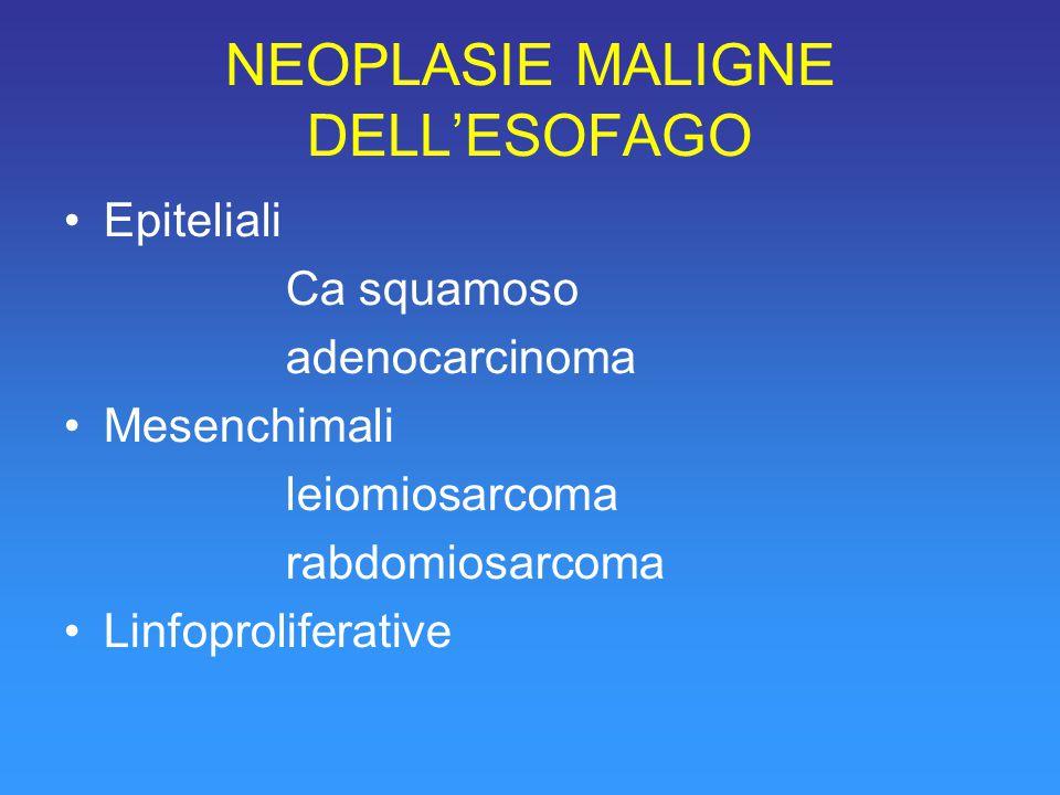 NEOPLASIE MALIGNE DELL'ESOFAGO Epiteliali Ca squamoso adenocarcinoma Mesenchimali leiomiosarcoma rabdomiosarcoma Linfoproliferative