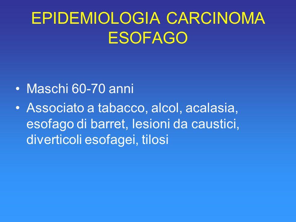 EPIDEMIOLOGIA CARCINOMA ESOFAGO Maschi 60-70 anni Associato a tabacco, alcol, acalasia, esofago di barret, lesioni da caustici, diverticoli esofagei, tilosi