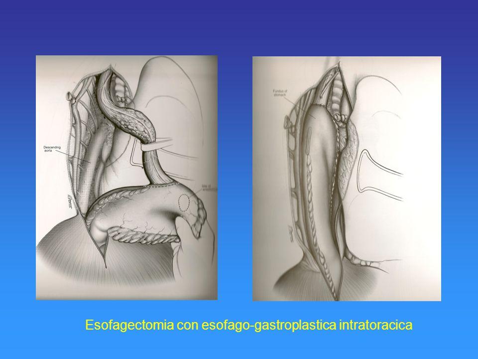 Esofagectomia con esofago-gastroplastica intratoracica