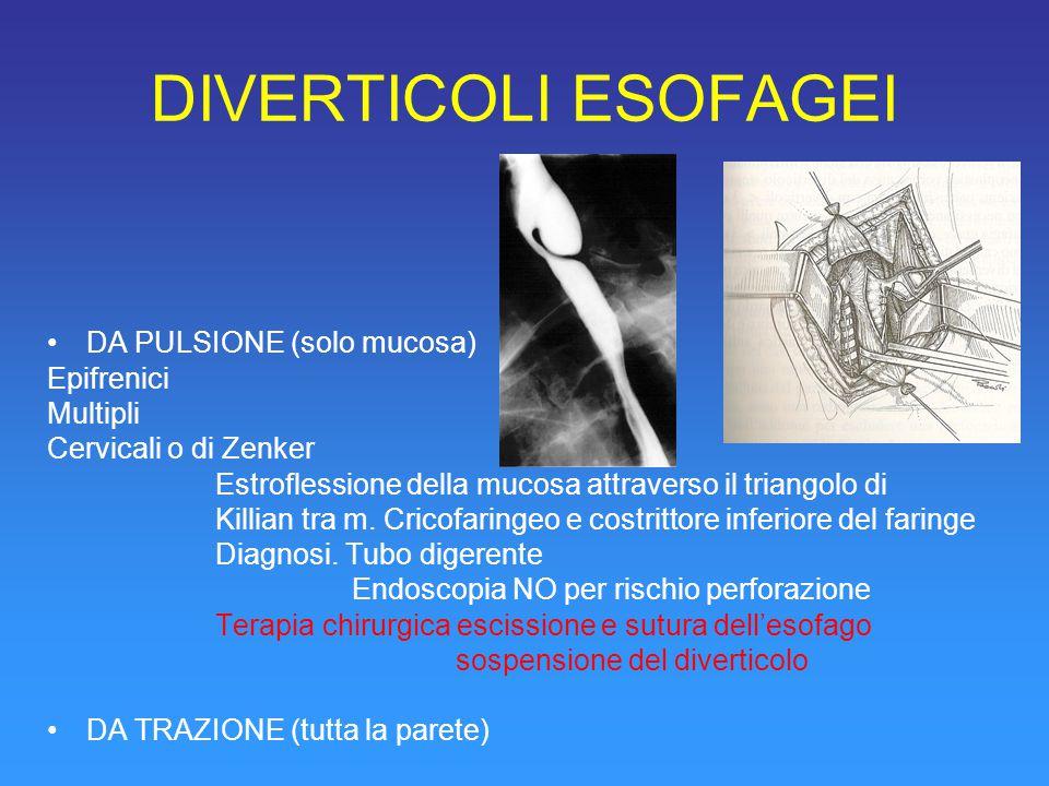 DIVERTICOLI ESOFAGEI DA PULSIONE (solo mucosa) Epifrenici Multipli Cervicali o di Zenker Estroflessione della mucosa attraverso il triangolo di Killian tra m.