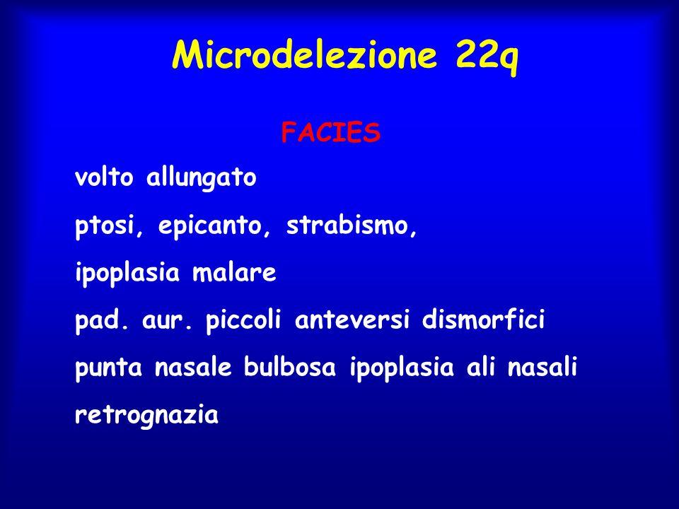 Microdelezione 22q FACIES volto allungato ptosi, epicanto, strabismo, ipoplasia malare pad. aur. piccoli anteversi dismorfici punta nasale bulbosa ipo