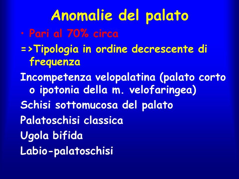 Anomalie del palato Pari al 70% circa =>Tipologia in ordine decrescente di frequenza Incompetenza velopalatina (palato corto o ipotonia della m. velof