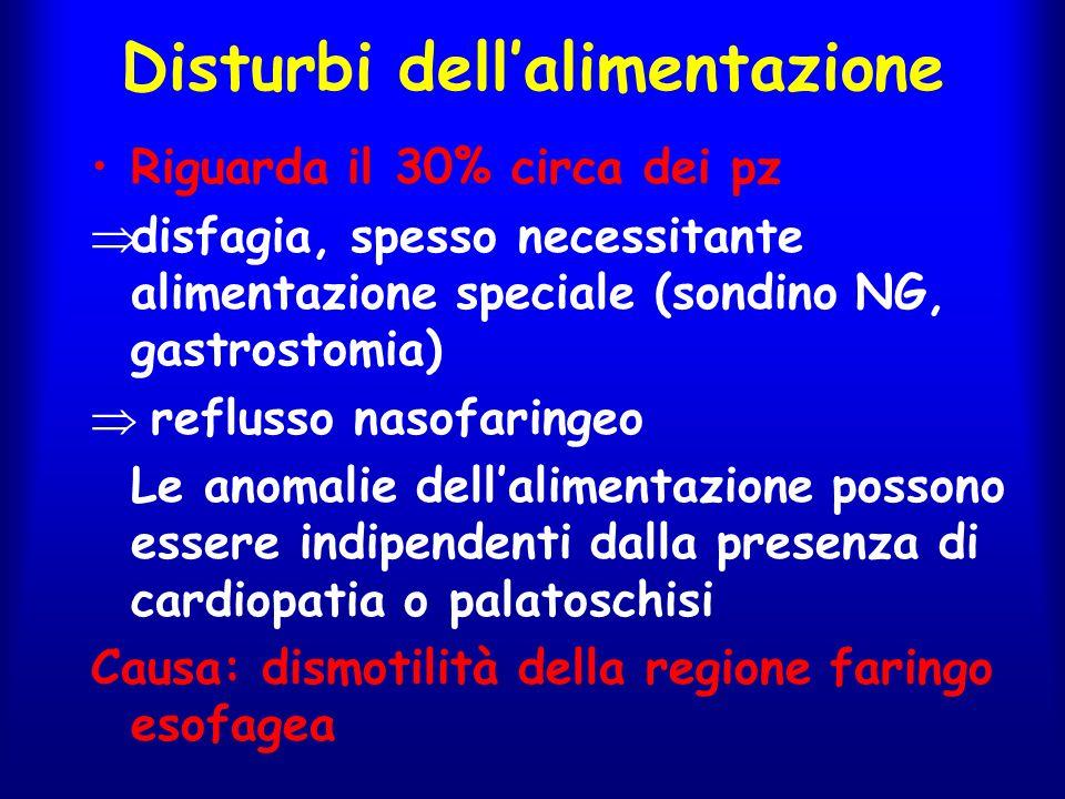 Disturbi dell'alimentazione Riguarda il 30% circa dei pz  disfagia, spesso necessitante alimentazione speciale (sondino NG, gastrostomia)  reflusso