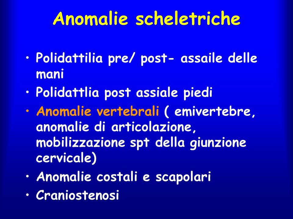 Anomalie scheletriche Polidattilia pre/ post- assaile delle mani Polidattlia post assiale piedi Anomalie vertebrali ( emivertebre, anomalie di articol