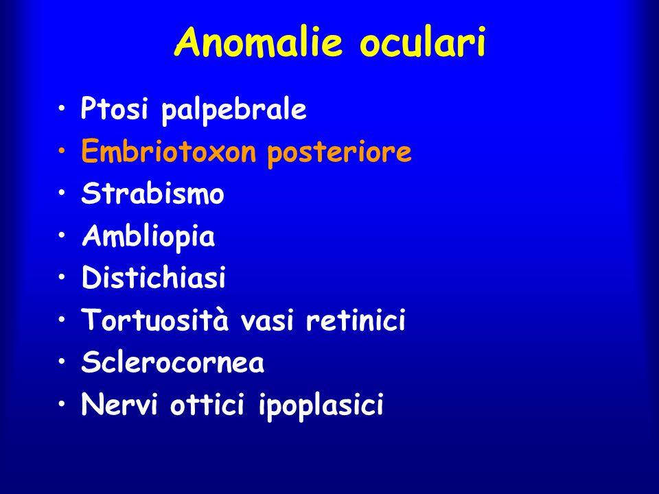 Anomalie oculari Ptosi palpebrale Embriotoxon posteriore Strabismo Ambliopia Distichiasi Tortuosità vasi retinici Sclerocornea Nervi ottici ipoplasici