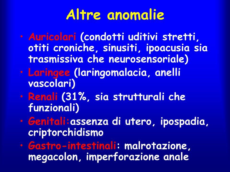 Altre anomalie Auricolari (condotti uditivi stretti, otiti croniche, sinusiti, ipoacusia sia trasmissiva che neurosensoriale) Laringee (laringomalacia