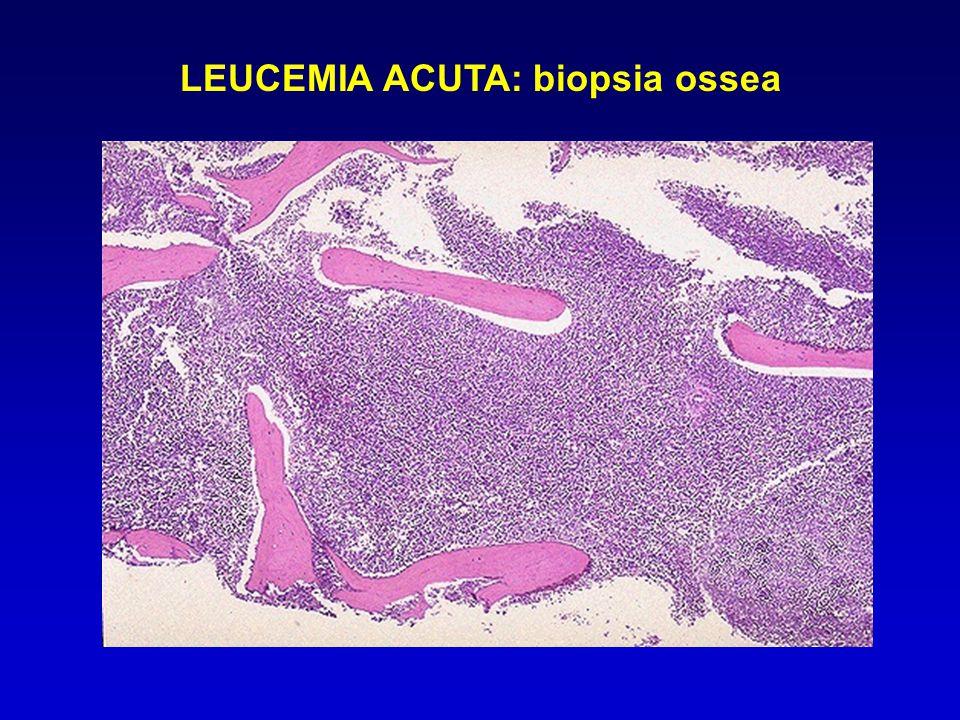 LEUCEMIA MIELOIDE CRONICA: emocromo EsameRisultatiU.M.