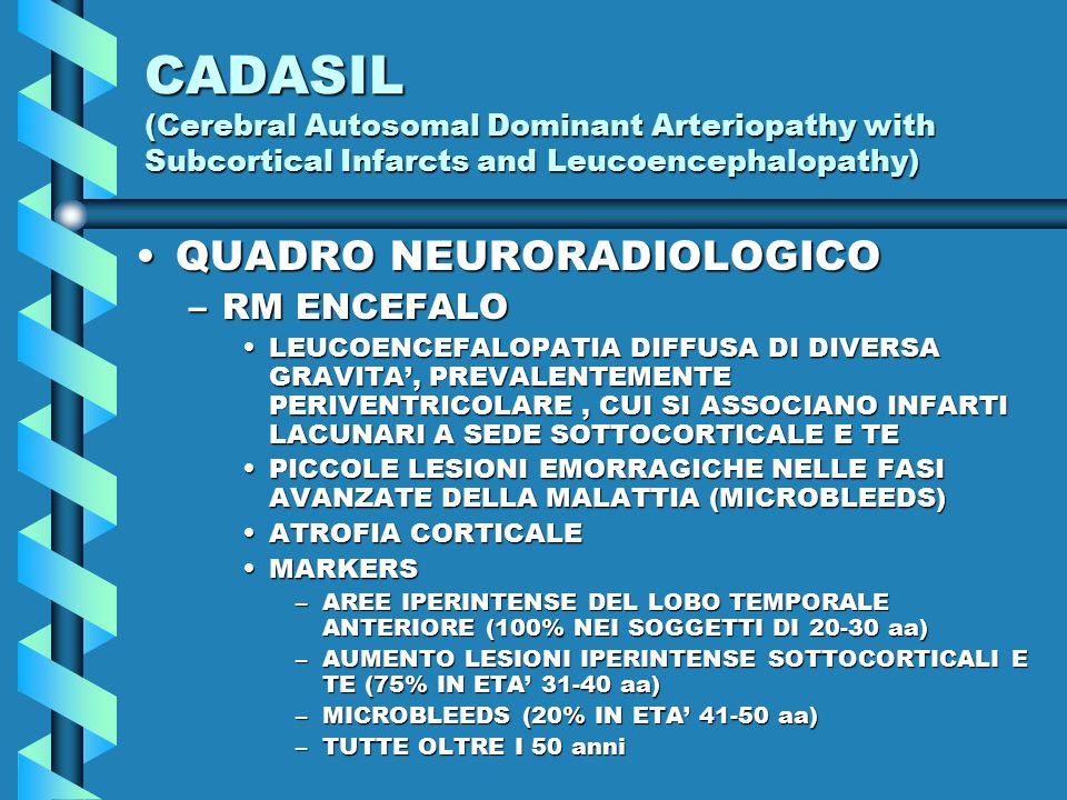 CADASIL (Cerebral Autosomal Dominant Arteriopathy with Subcortical Infarcts and Leucoencephalopathy) QUADRO NEURORADIOLOGICOQUADRO NEURORADIOLOGICO –RM ENCEFALO LEUCOENCEFALOPATIA DIFFUSA DI DIVERSA GRAVITA', PREVALENTEMENTE PERIVENTRICOLARE, CUI SI ASSOCIANO INFARTI LACUNARI A SEDE SOTTOCORTICALE E TELEUCOENCEFALOPATIA DIFFUSA DI DIVERSA GRAVITA', PREVALENTEMENTE PERIVENTRICOLARE, CUI SI ASSOCIANO INFARTI LACUNARI A SEDE SOTTOCORTICALE E TE PICCOLE LESIONI EMORRAGICHE NELLE FASI AVANZATE DELLA MALATTIA (MICROBLEEDS)PICCOLE LESIONI EMORRAGICHE NELLE FASI AVANZATE DELLA MALATTIA (MICROBLEEDS) ATROFIA CORTICALEATROFIA CORTICALE MARKERSMARKERS –AREE IPERINTENSE DEL LOBO TEMPORALE ANTERIORE (100% NEI SOGGETTI DI 20-30 aa) –AUMENTO LESIONI IPERINTENSE SOTTOCORTICALI E TE (75% IN ETA' 31-40 aa) –MICROBLEEDS (20% IN ETA' 41-50 aa) –TUTTE OLTRE I 50 anni