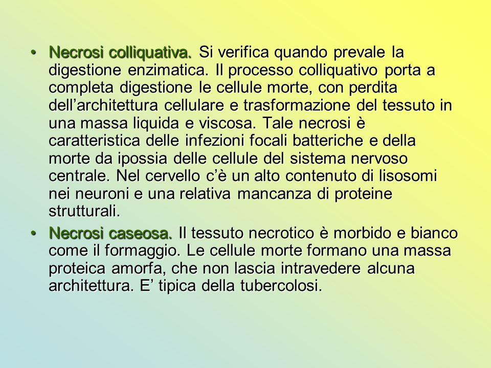 Necrosi colliquativa. Si verifica quando prevale la digestione enzimatica. Il processo colliquativo porta a completa digestione le cellule morte, con