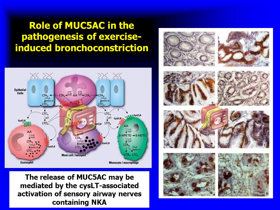 Role of MUC5AC in the pathogenesis of exercise- induced bronchoconstriction The release of MUC5AC may be mediated by the cysLT-associated activation o