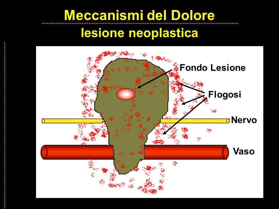 Meccanismi del Dolore lesione neoplastica Meccanismi del Dolore lesione neoplastica Fondo Lesione Flogosi Vaso Nervo