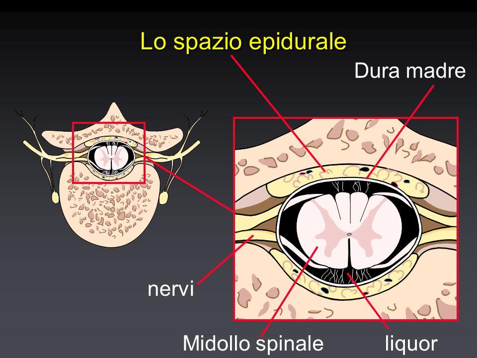 Lo spazio epidurale Dura madre Midollo spinale nervi liquor