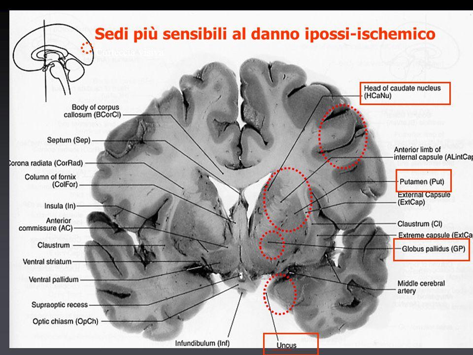 Sedi più sensibili al danno ipossi-ischemico Corteccia visiva