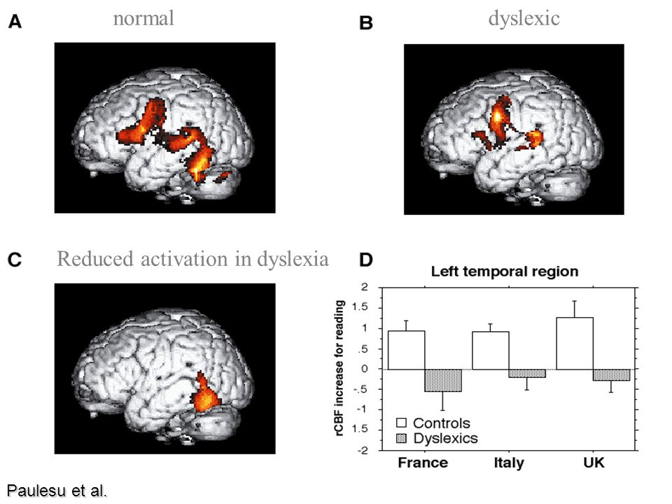 Reduced activation in dyslexia dyslexicnormal Paulesu et al.